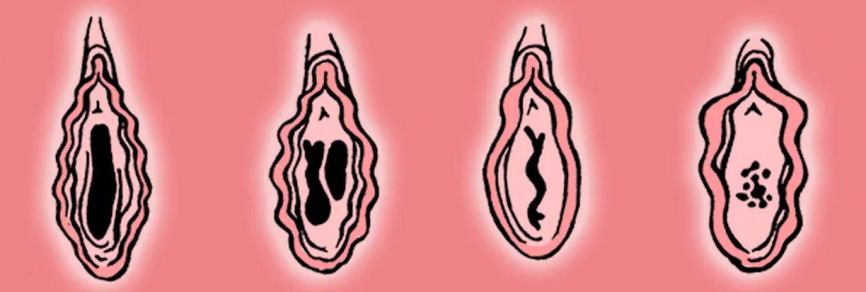 Hymen redéfinitions